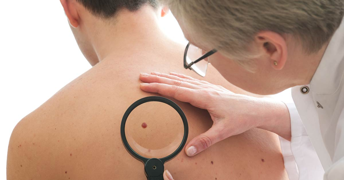 Melanoma Prevention and Detection Basics
